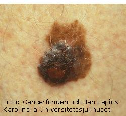 malignt melanom symtom bilder